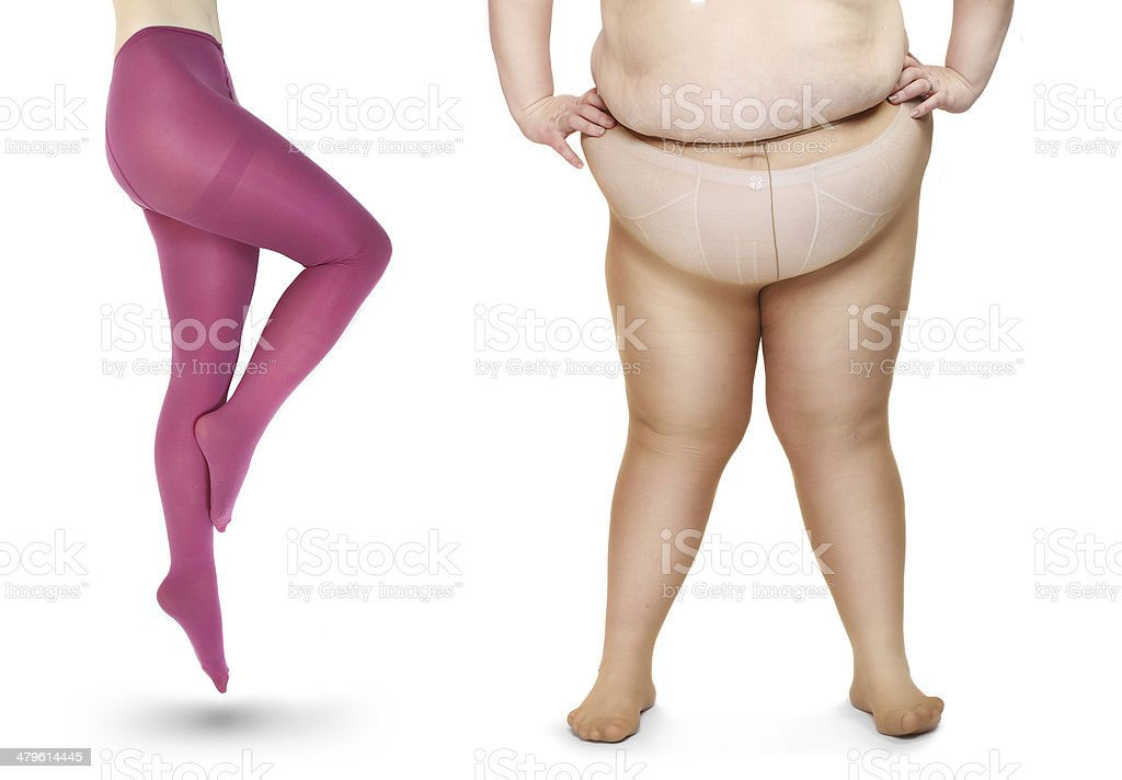 Obese and slim legs. stock photo