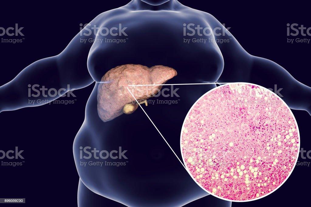 Fotografía de Hombre Obeso Con Hígado Graso y más banco de imágenes ...