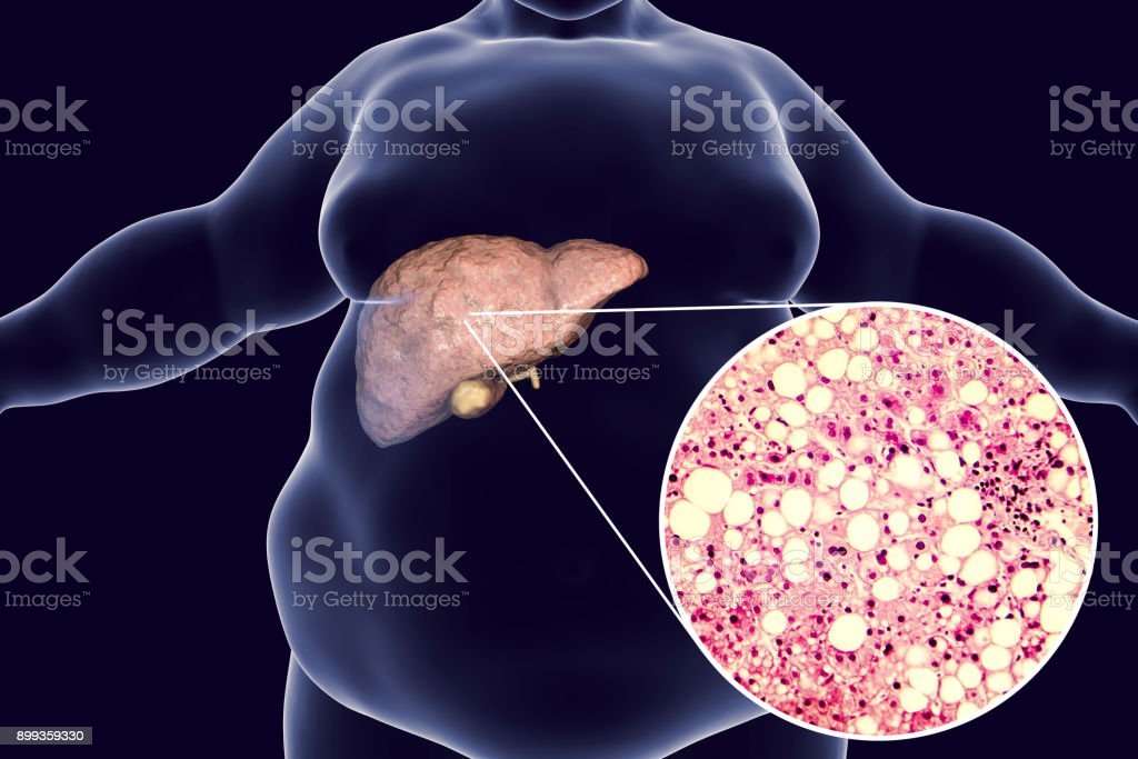 Obese man with fatty liver stock photo