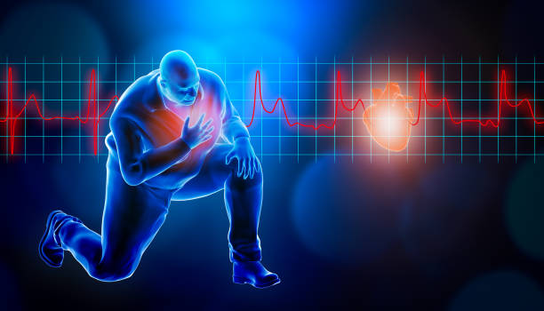 Obese of fat man kneeling while suffering from a heart attack 3d rendering illustration. STEMI heart rate EKG in the background and copy space. Medical and healthcare, myocardial infarction concept. stock photo