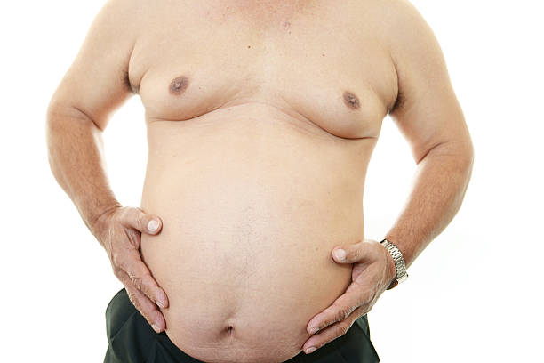 obese patient - metabolic syndrome stock photos and pictures