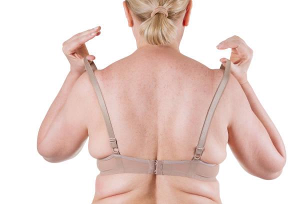 Obesity female body, fat woman back isolated on white background stock photo