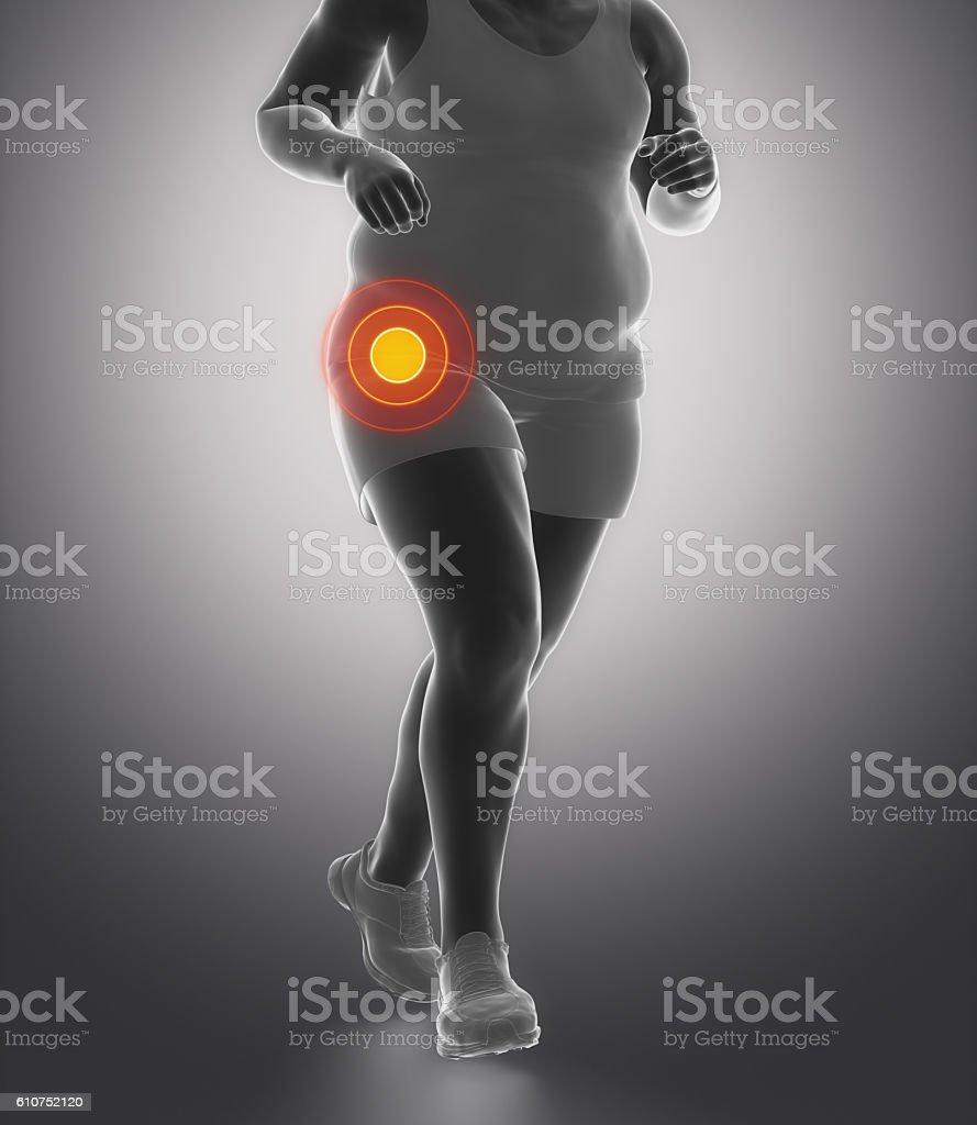 Obesity hip joint injury stock photo