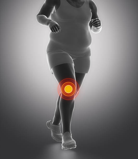 obesity knee joint ache - janulla stock pictures, royalty-free photos & images