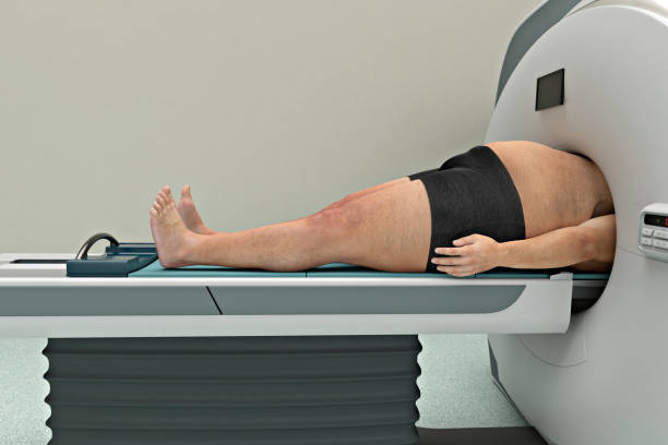 Fettleibigkeit-Mann in einer mri-Maschine-Seitenansicht stecken – Foto