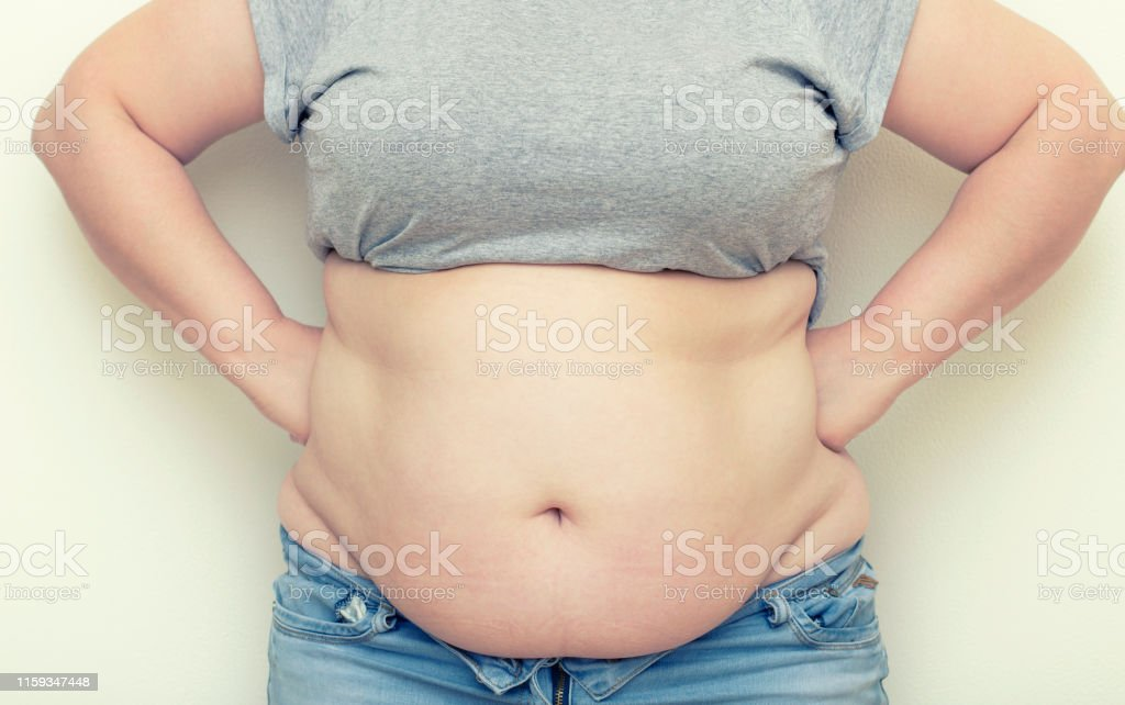 Obesity. Obese Woman Holding His Belly Fat With Both Hands Giving An...