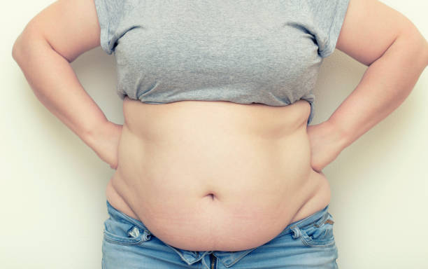 Obesity. Obese Woman Holding His Belly Fat With Both Hands Giving An Expression Of Shock. stock photo