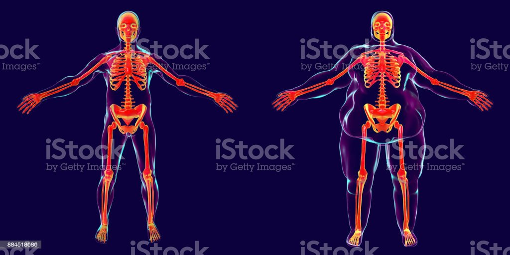 Obesity problem conceptual image stock photo