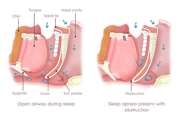obstruction sleep apnea - respiratory tract stock photos and pictures