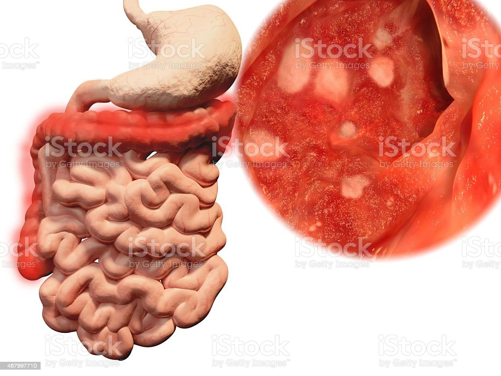 Occurrence of ulcerative colitis in the gastrointestinal trac stock photo