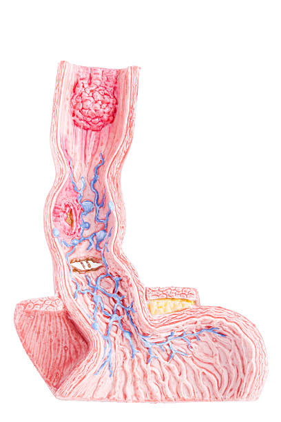 oesophagus illnesses - esophagus stock photos and pictures