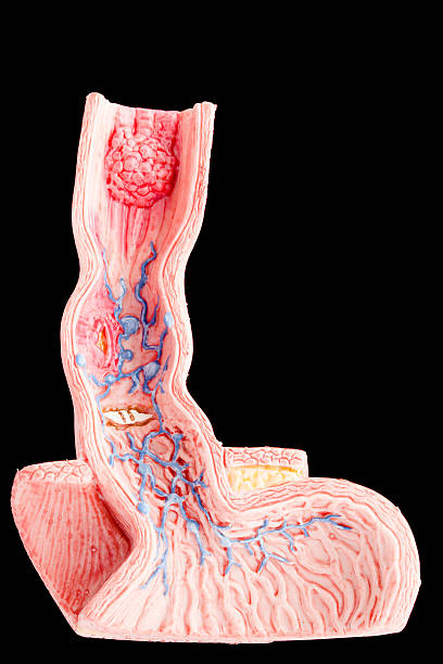 oesophagus - esophagus stock photos and pictures