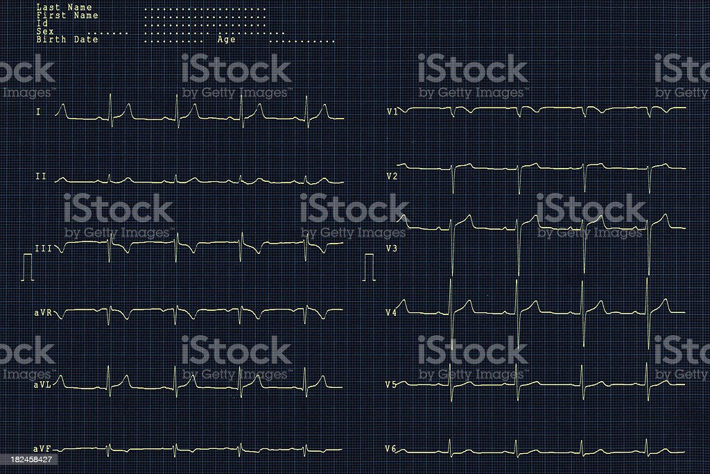 ECG of a heart attac taken in emergency service royalty-free stock photo