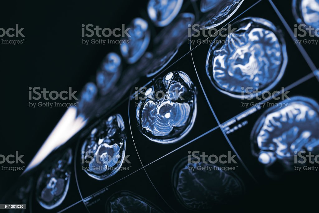 MRI of brain, concept of the mysteries of the human mind stock photo