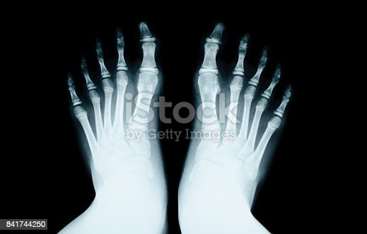 istock X-RAY of foot human 841744250