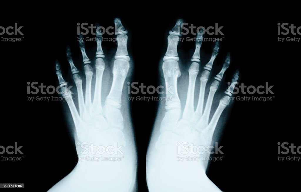 X-RAY of foot human stock photo