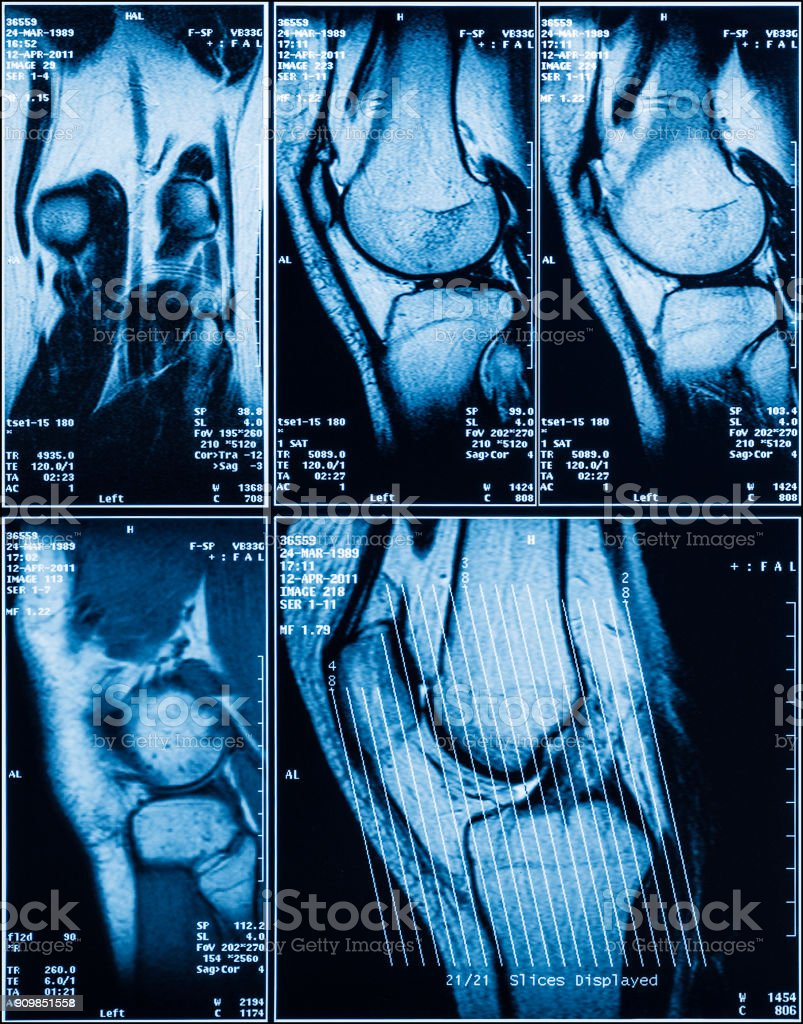 MRI of Human Knee for Medical Diagnosis stock photo