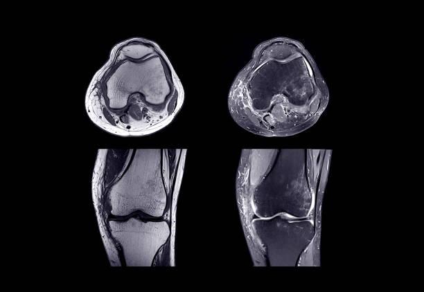 mrt av höger knä - knäskål bildbanksfoton och bilder