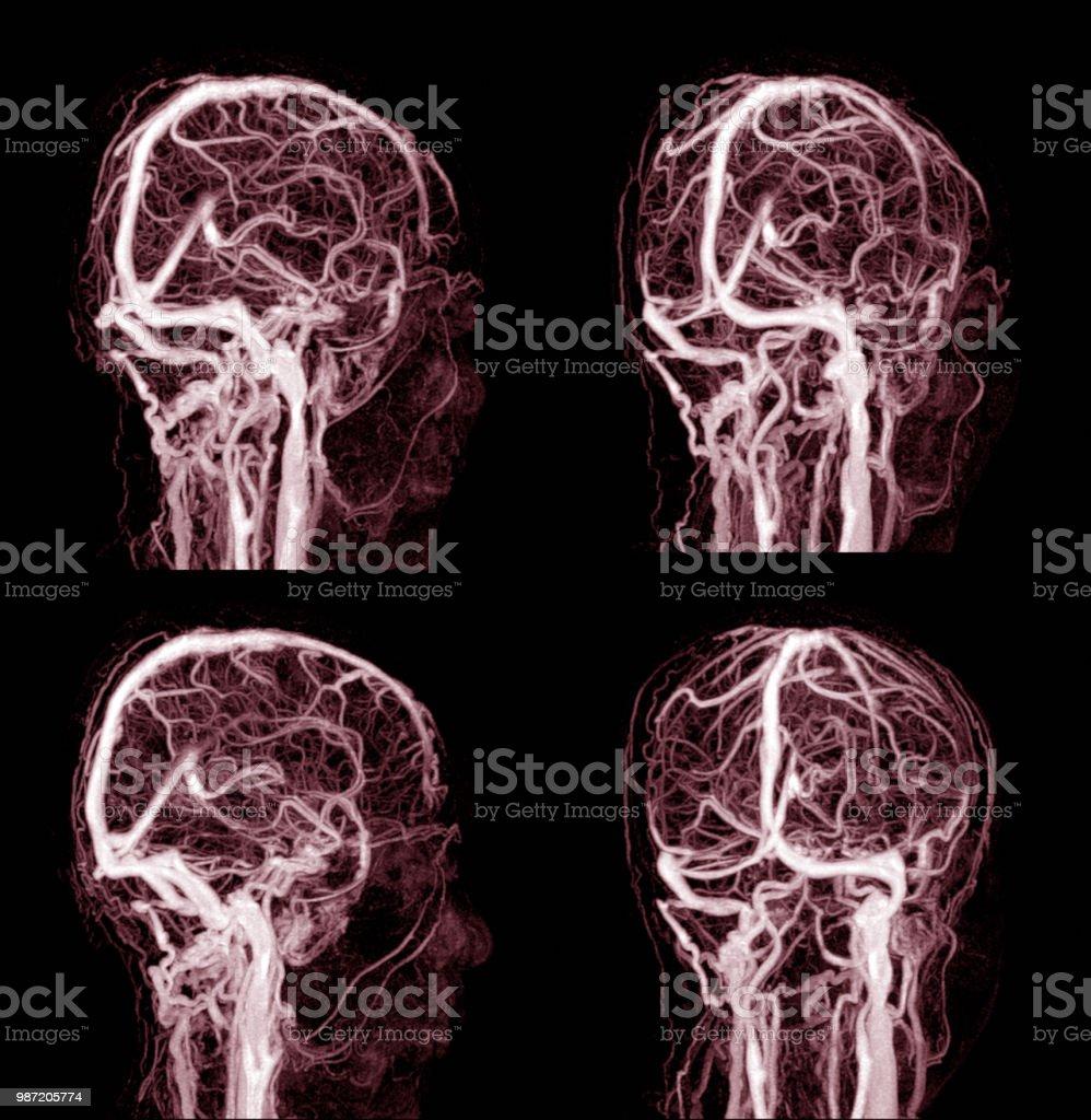 MRI de la arteria cerebral en el cerebro y la enfermedad cerebrovascular. imagen de rayos x de ictus cerebral. - foto de stock