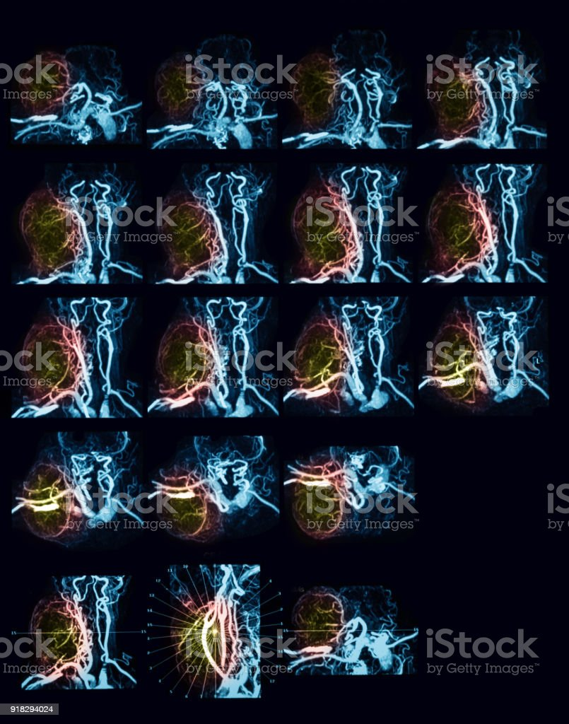 MRA (Magnetic resonance angiography) of the neck stock photo