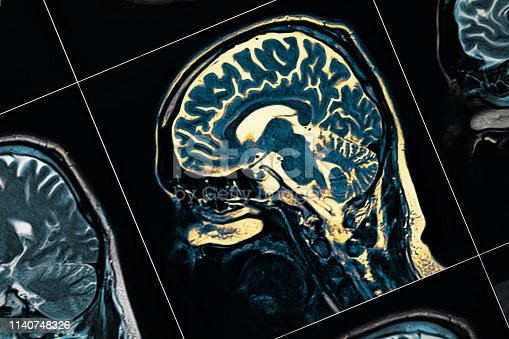 MRI of the patient's head close-up. One picture from the series.