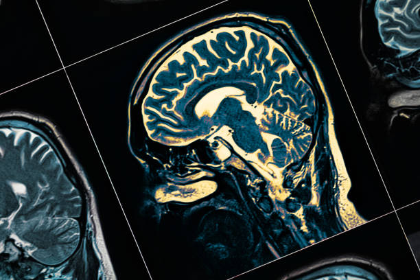 mri of the patient's head close-up. one picture from the series - alzheimer imagens e fotografias de stock