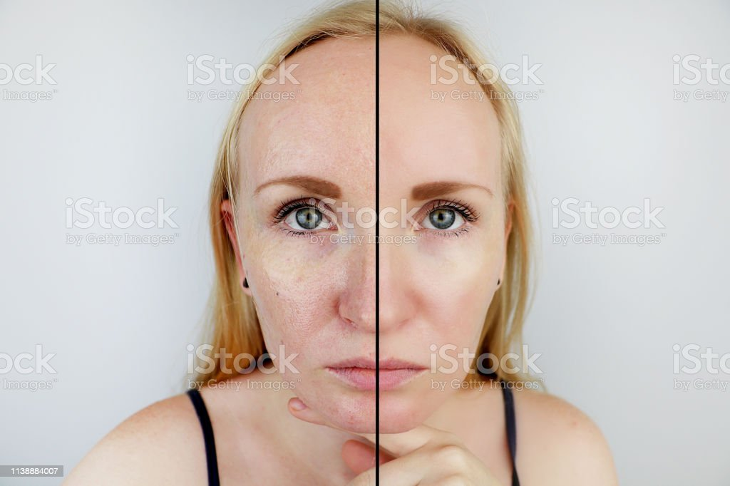 Oily skin and clear skin. Two photos before and after. Portrait of a girl with problem skin stock photo