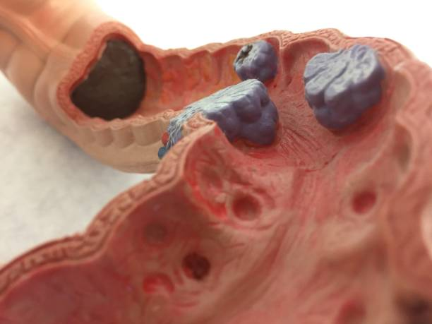 old anatomical model of human intestines. colon cancer - medical diagrams stock pictures, royalty-free photos & images
