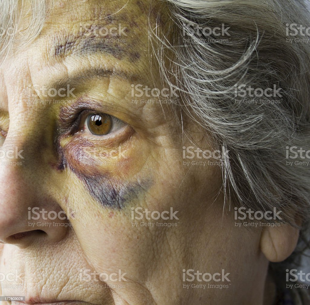 Old and Bruised. stock photo