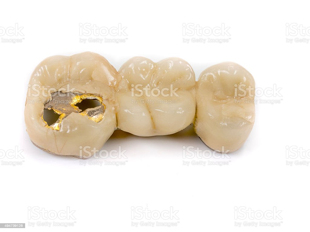old dental gold from a bridge stock photo