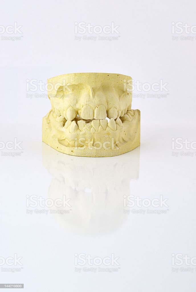 Old Dental Mould royalty-free stock photo
