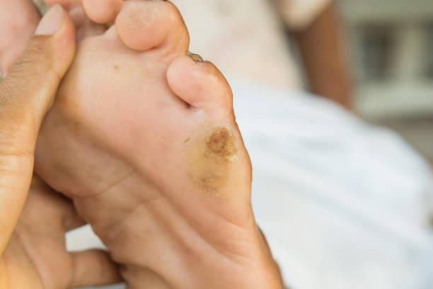 vieilles semelles de pied dans les vieilles femmes - verrue pied photos et images de collection
