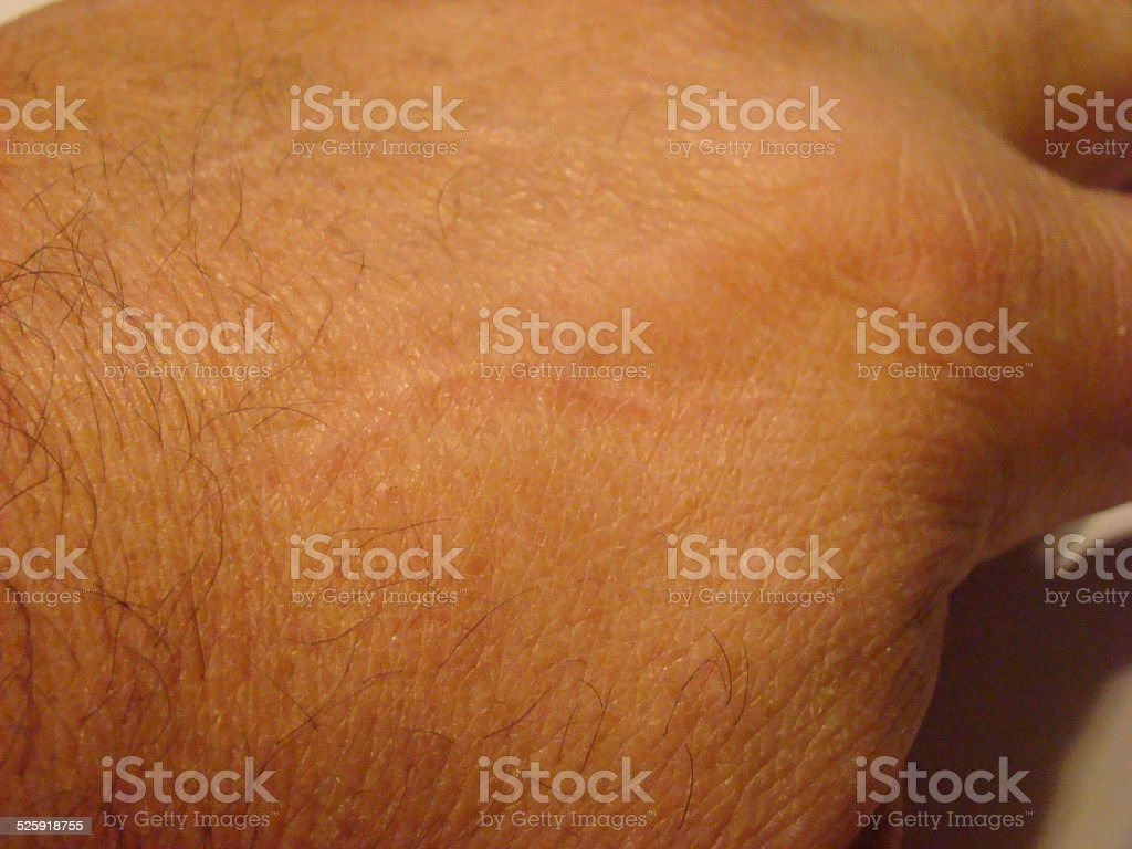 Old hand scar stock photo