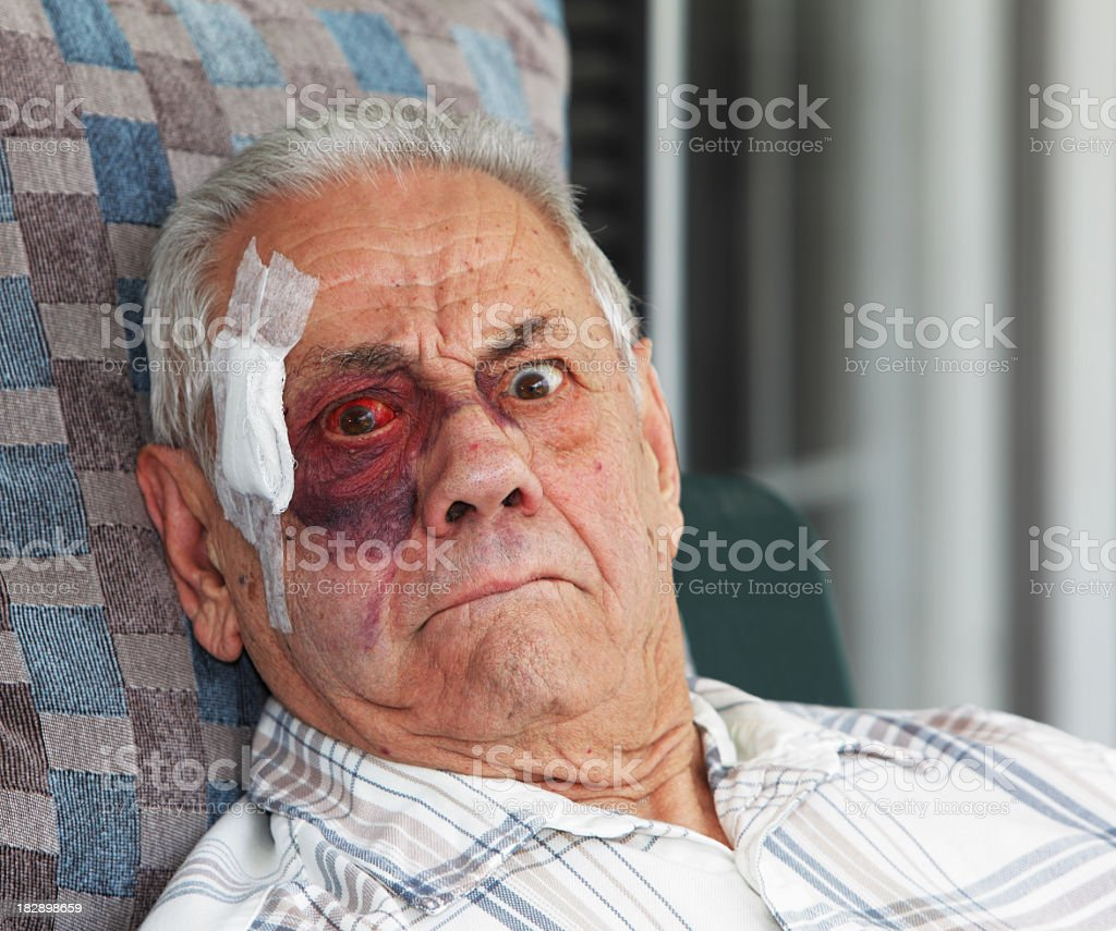 Old Man With Black Eye and Bandage Mugging for Camera stock photo