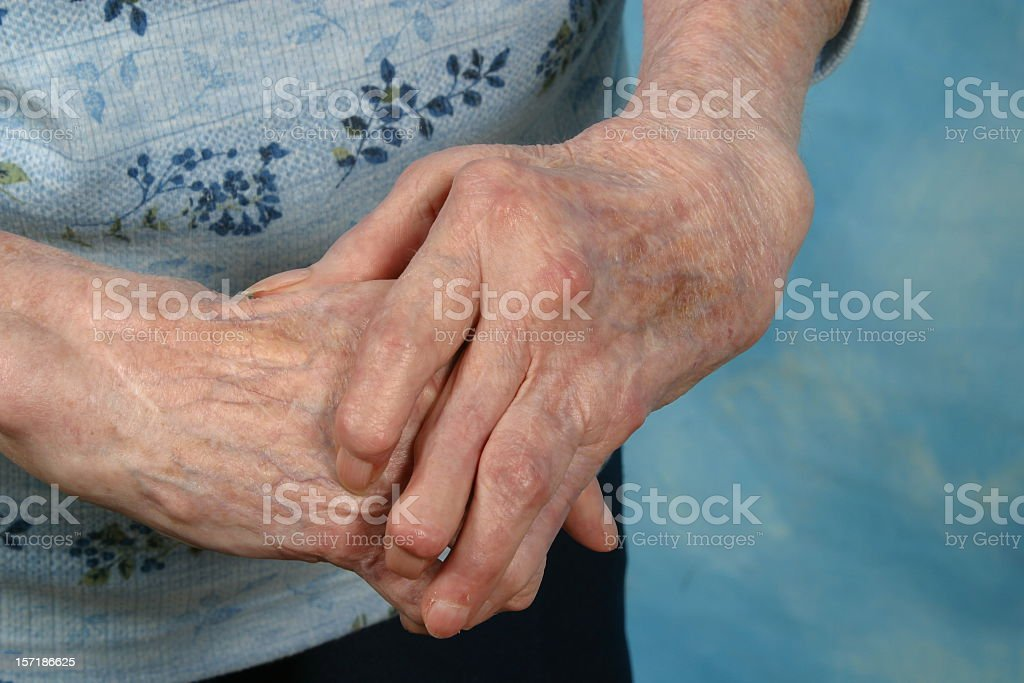 Old person with skin spots on arthritic hands stock photo