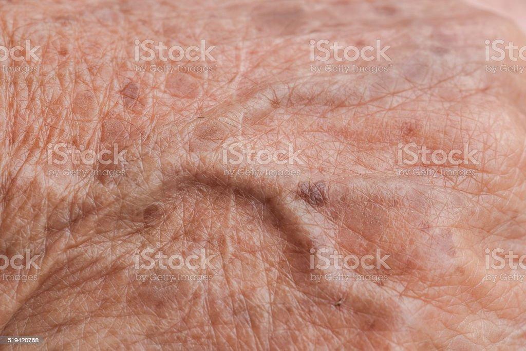 old woman skin blood vessel stock photo