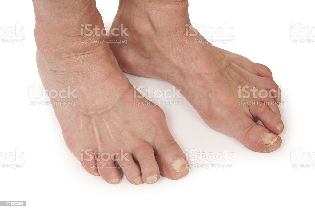 Old Woman's Foots Deformed From Rheumatoid Arthritis royalty-free stock photo