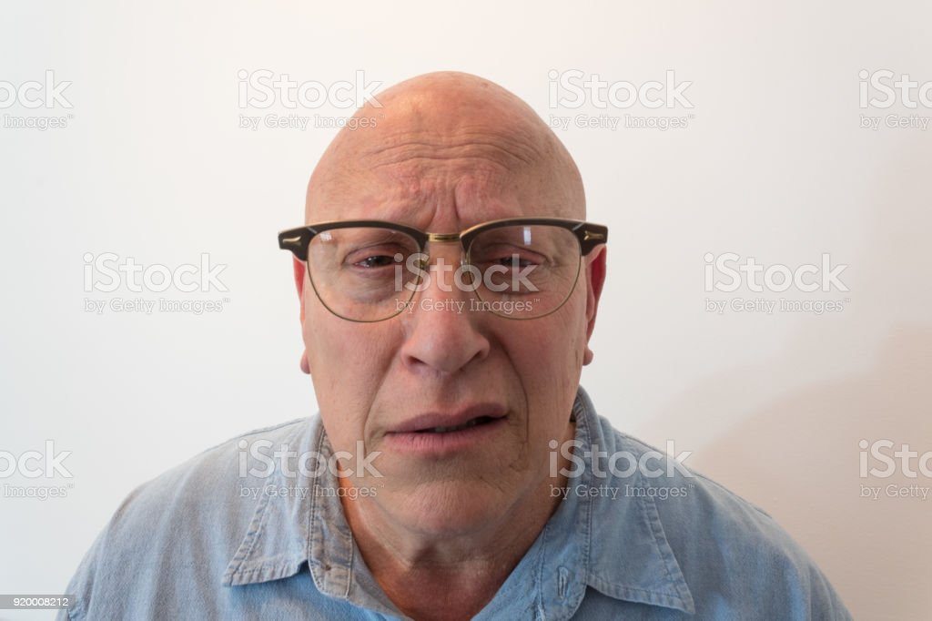 Older man bewildered with horn rimmed glasses, bald, alopecia, chemotherapy, cancer stock photo