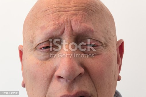 istock Older man close view of face with anxious pain, bald, alopecia, chemotherapy, cancer, isolated on white 920008208