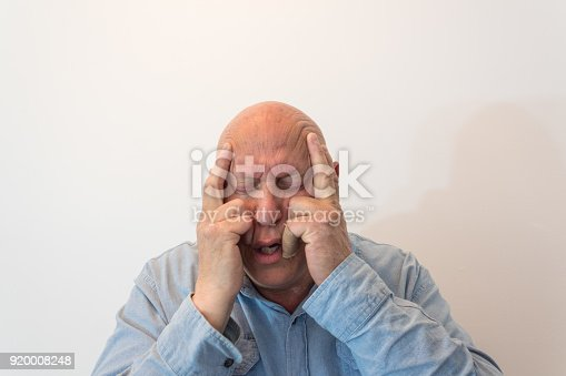 istock Older man hands to temples in pain, bald, alopecia, chemotherapy, cancer, isolated on white 920008248