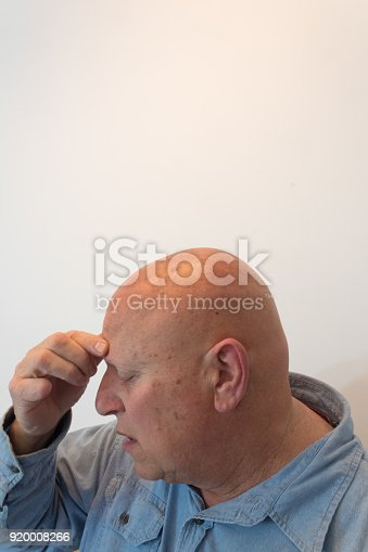 istock Older man head in profile hand to forehead, headache, bald, alopecia, chemotherapy, cancer, isolated on white 920008266
