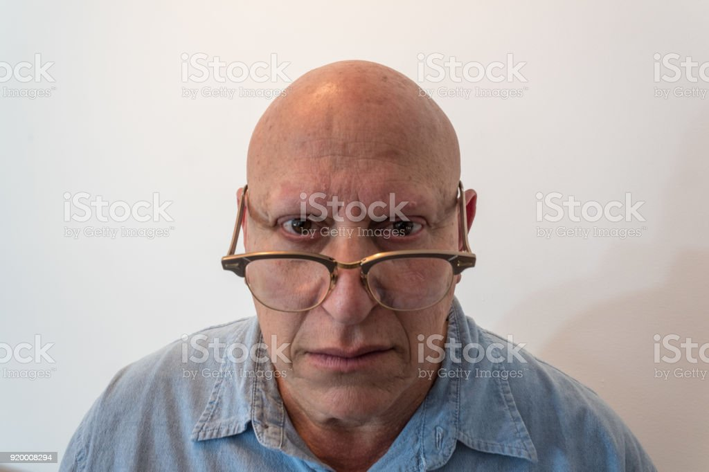 Older man looking over horn rimmed glasses, bald, alopecia, chemotherapy, cancer, isolated on white stock photo