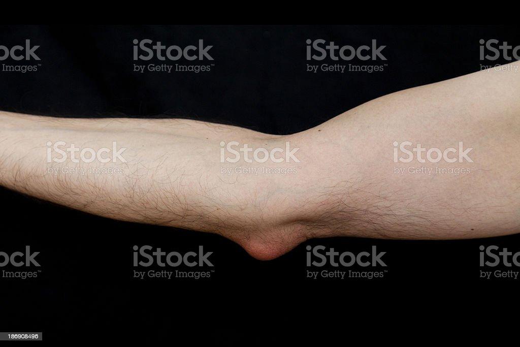 Olecranon Bursitis Also Known As Students Elbow Stock Photo More