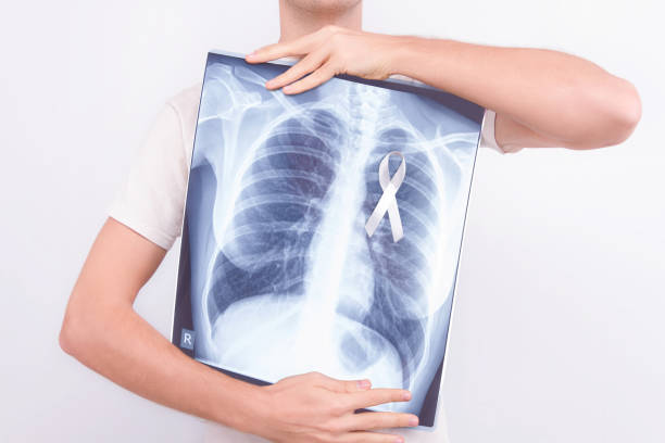 Oncological disease concept stock photo