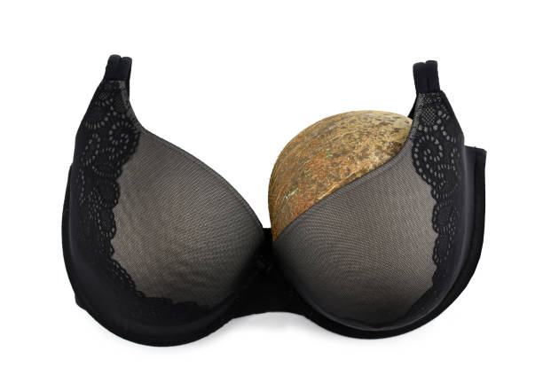 One breast breast cancer concept half empty bra after amputation surgery stock photo