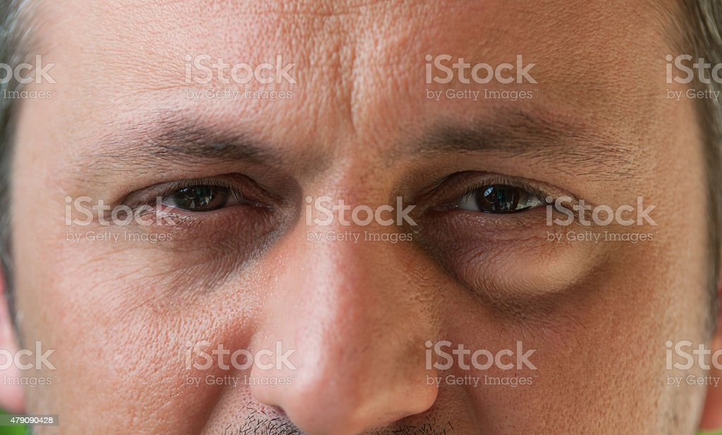 One eye with conjunctivitis stock photo