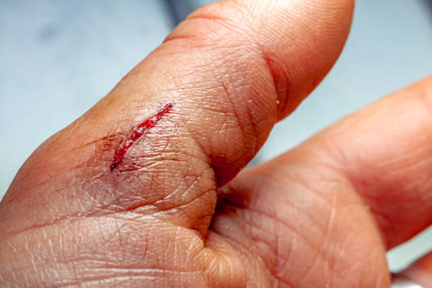 one photo of a series of photos taken of a fresh bleeding cut development over a priod of 90 minutes - knife wound stock photos and pictures