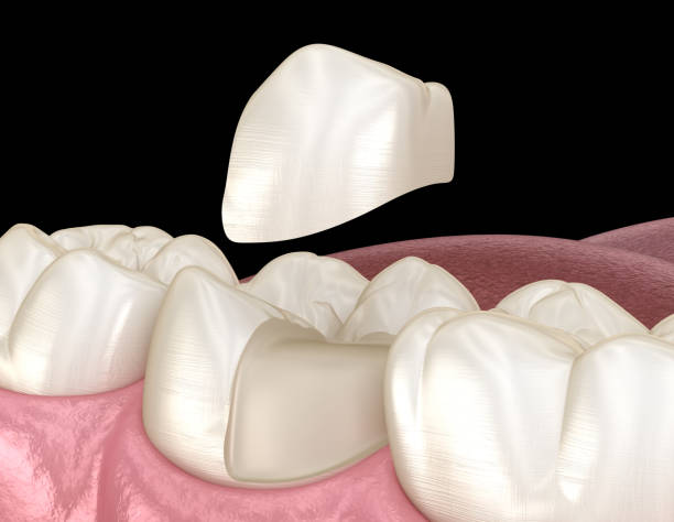 Onlay ceramic crown fixation over tooth. Medically accurate 3D illustration of human teeth treatment Onlay ceramic crown fixation over tooth. Medically accurate 3D illustration of human teeth treatment inlay stock pictures, royalty-free photos & images
