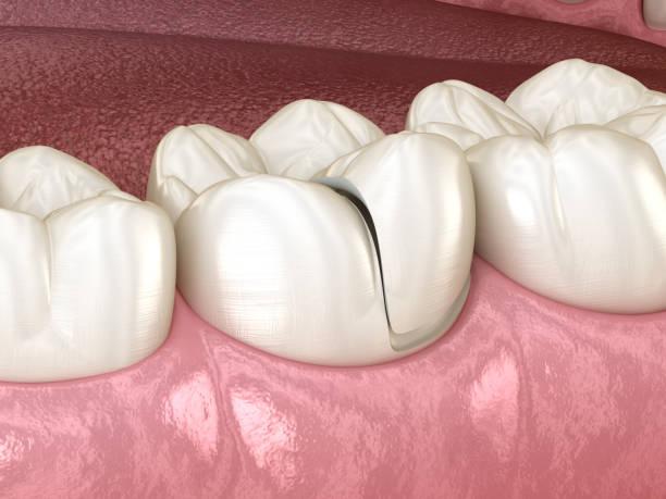 onlay keramik krone fixierung über zahn. medizinisch genaue 3d abbildung des menschlichen zähnen behandlung - inlay zahn stock-fotos und bilder