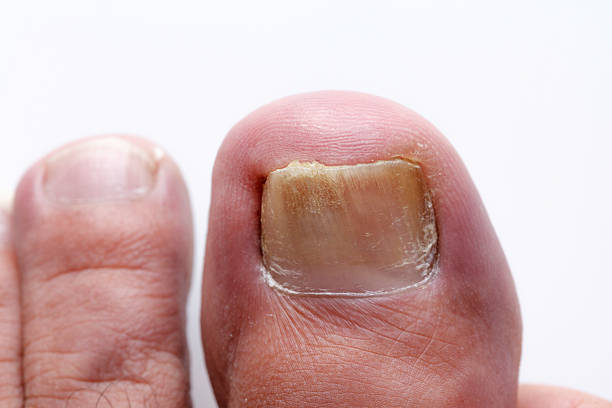 Onychomycosis fungus Infection on nails stock photo